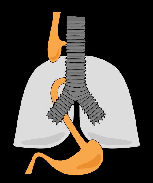 Kombination aus a und b: die Speiseröhre ist unterbrochen, jedoch sind oberer und unterer Teil mit der Luftröhre verbunden
