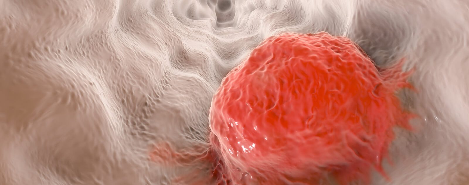 Bei bösartigen Speiseröhrenkrebs wuchern Zellen der Speiseröhrenschleimhaut unkontrolliert weiter