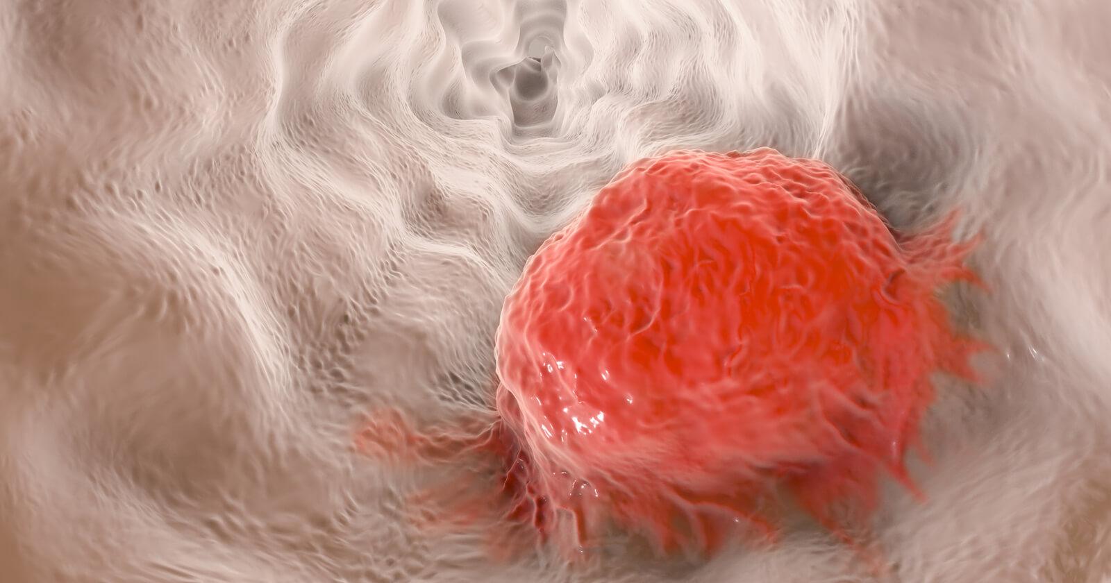Speiseröhrenkrebs: Symptome, Verlauf & Behandlung | kanyo®