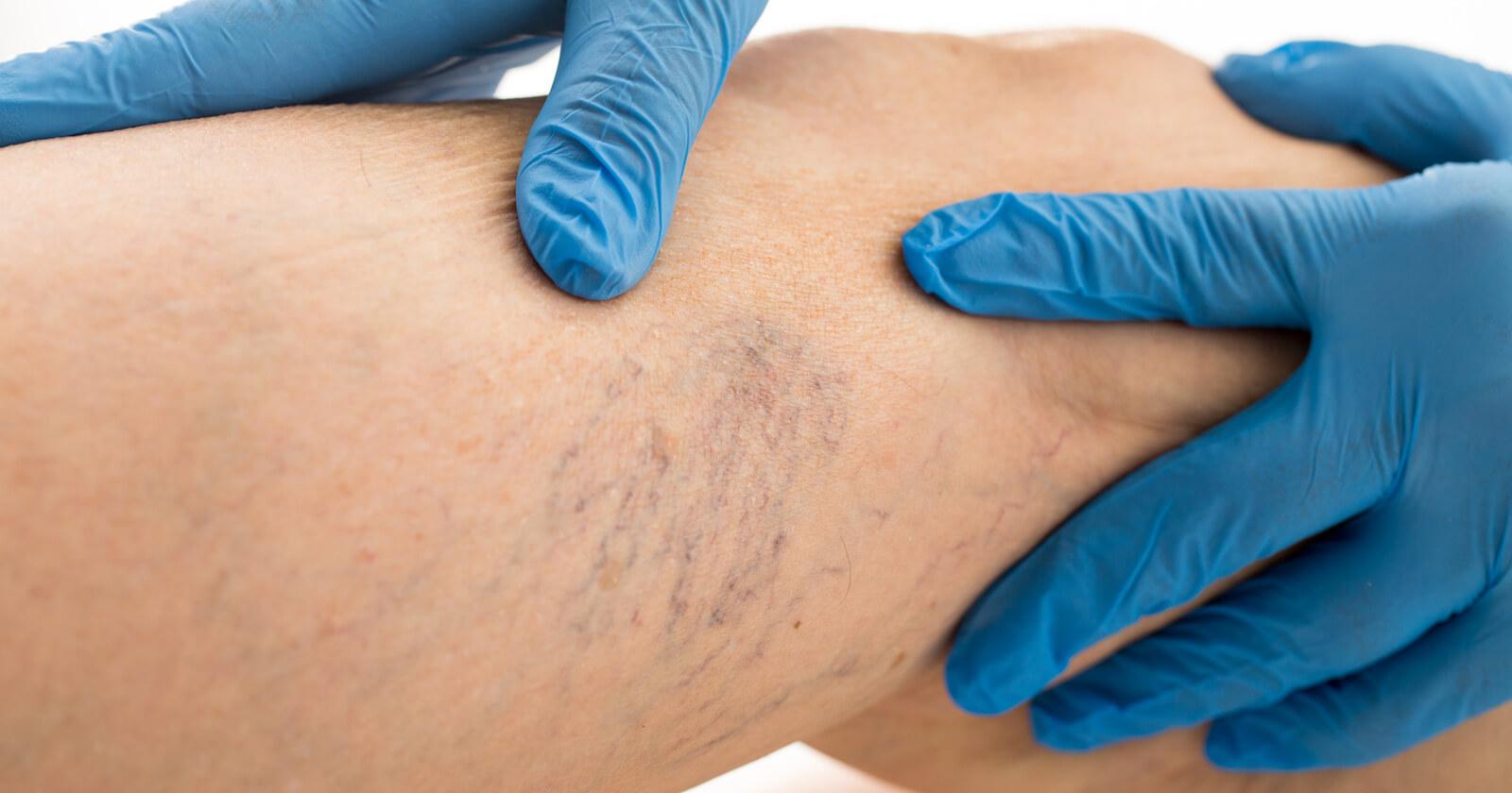 Ösophagusvarizen Ursachen Symptome & Therapie
