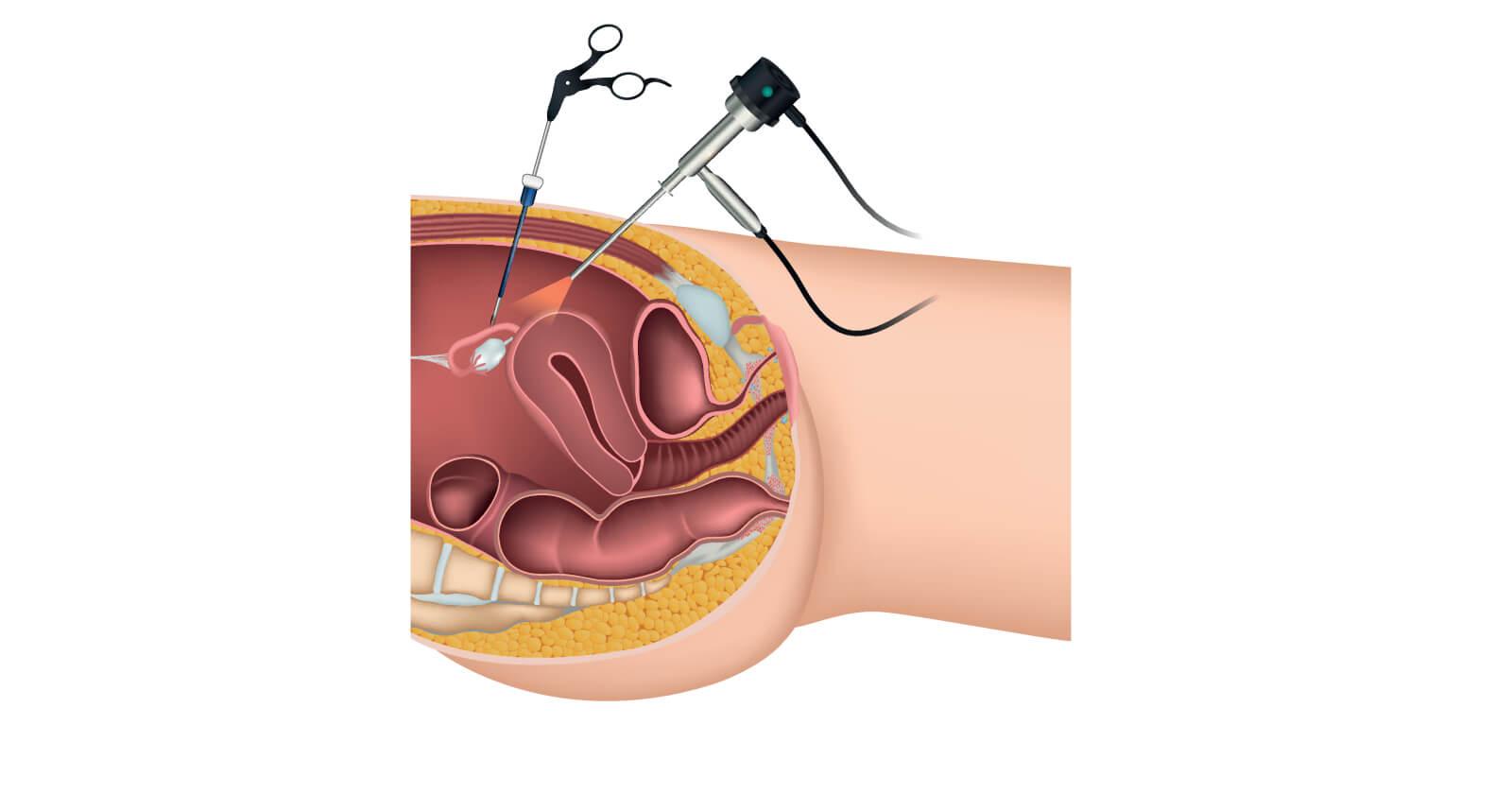 Bauchspiegelung Laparoskopie Ablauf Dauer & Nachsorge
