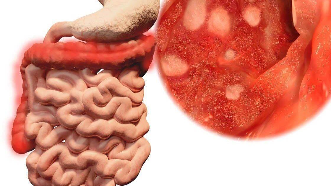Abbildung von entzündeter Darmschleimhaut bei Colitis ulcerosa